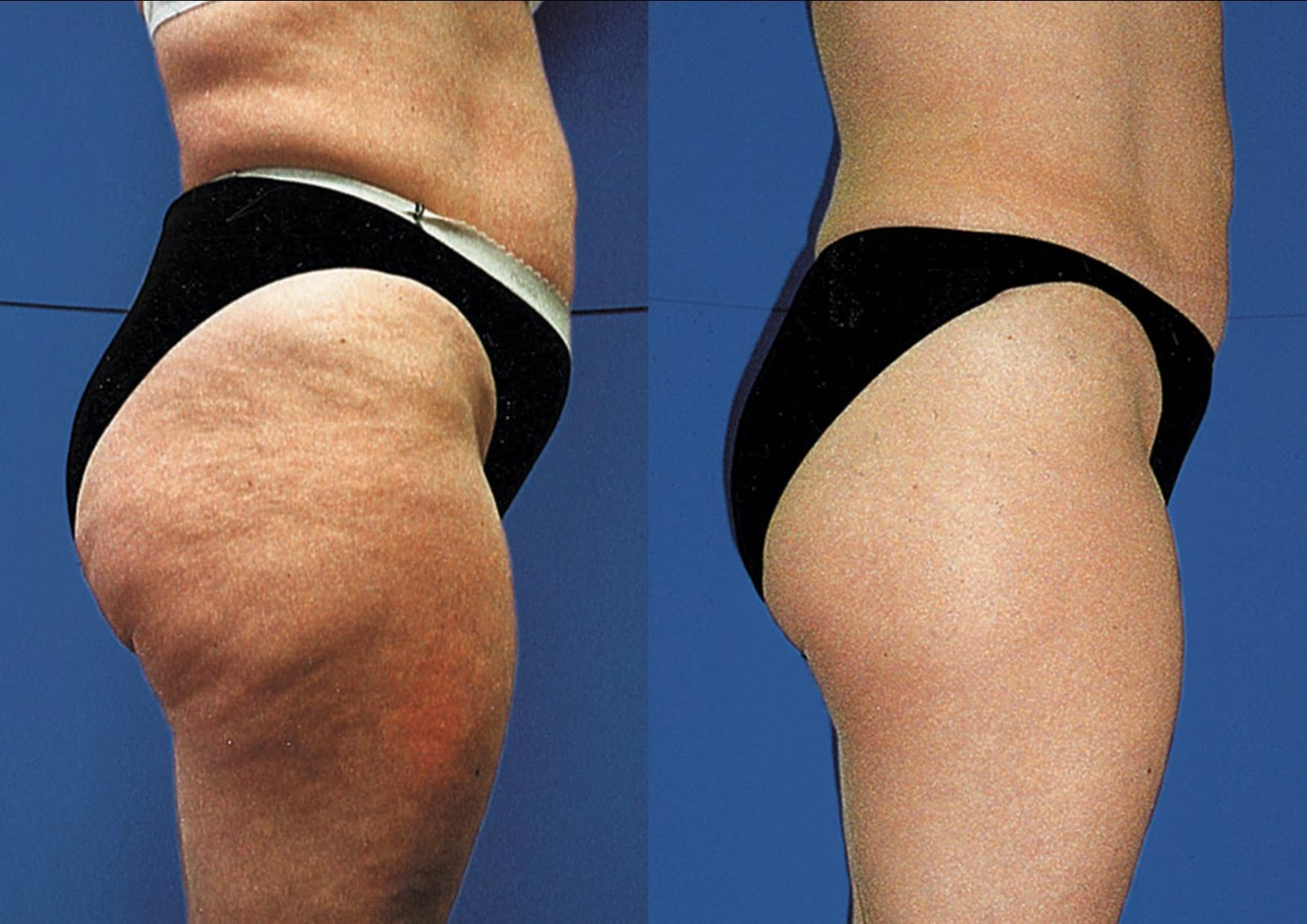 Causes Of Cellulite Anti Cellulite Treatments And Solutions